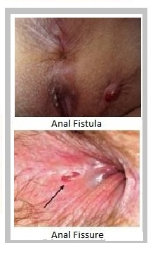 Anal fissure healing signs